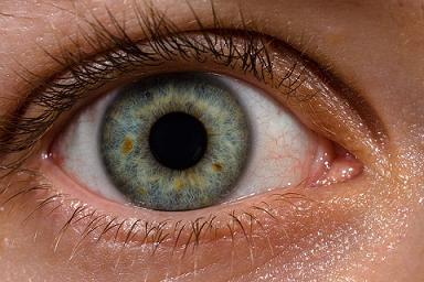 oog laseren is een populaire behandelmethode; foto van wiki